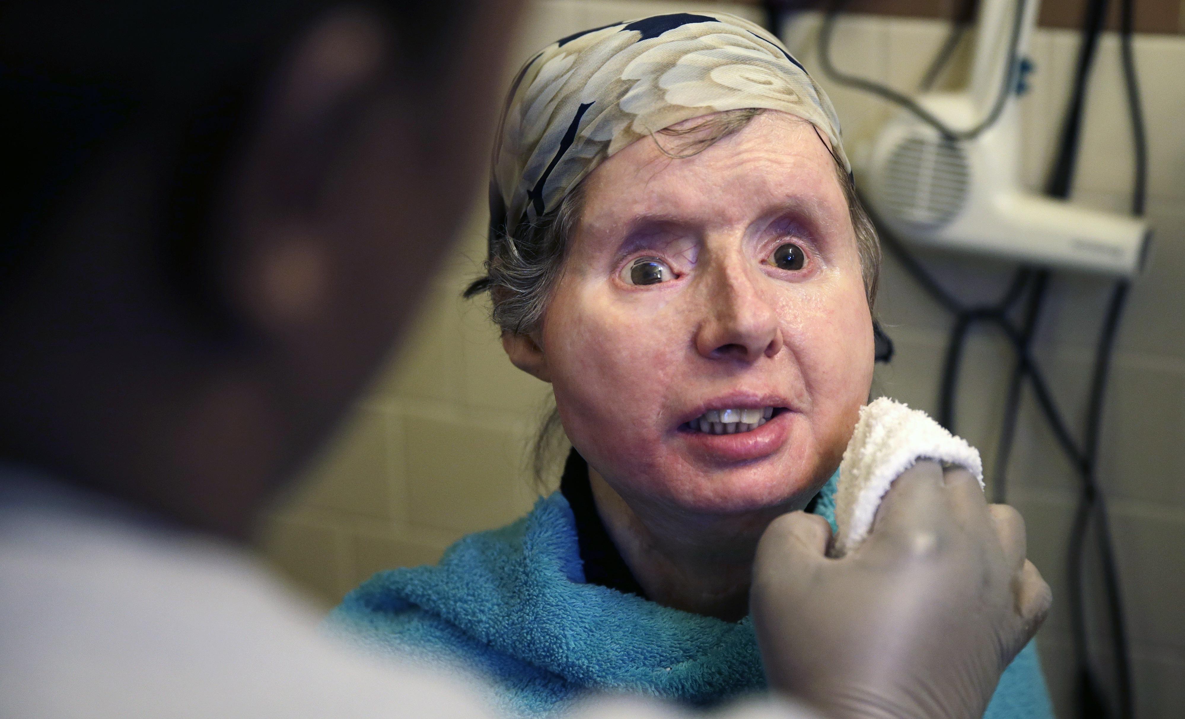 Body Of Chimp Victim Rejecting Face Transplant