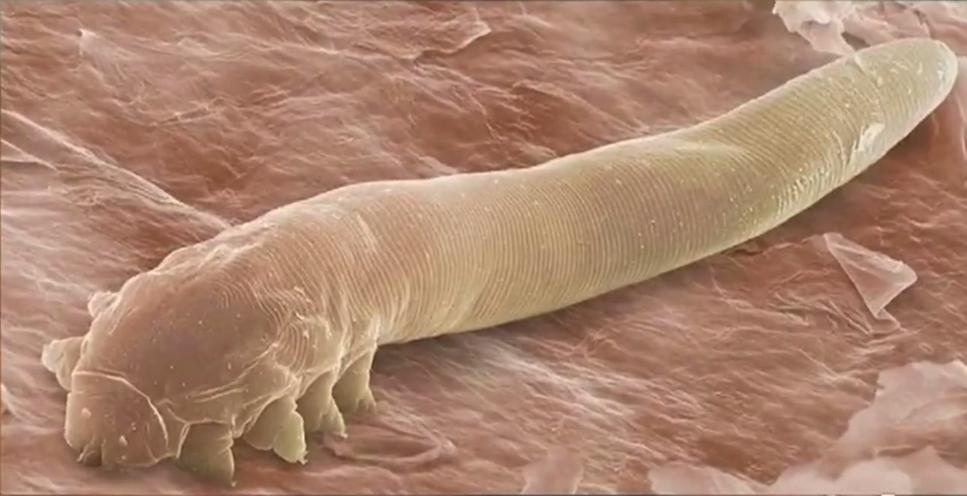 Eye Mites Millions Of People Have Them And Dont Know It Cbs News
