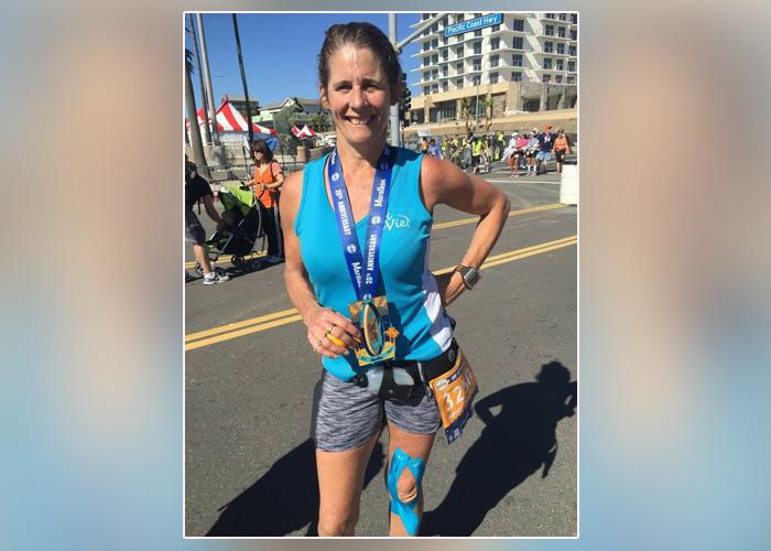a00f1c689 surgeons repair massive shark bite on california woman - CBS News