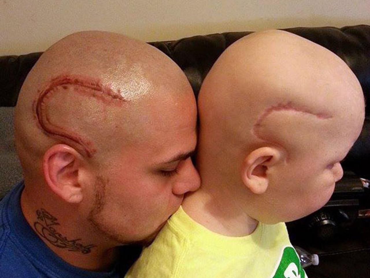 80d36900a Kansas dad gets head tattoo to match son's cancer scar - CBS News