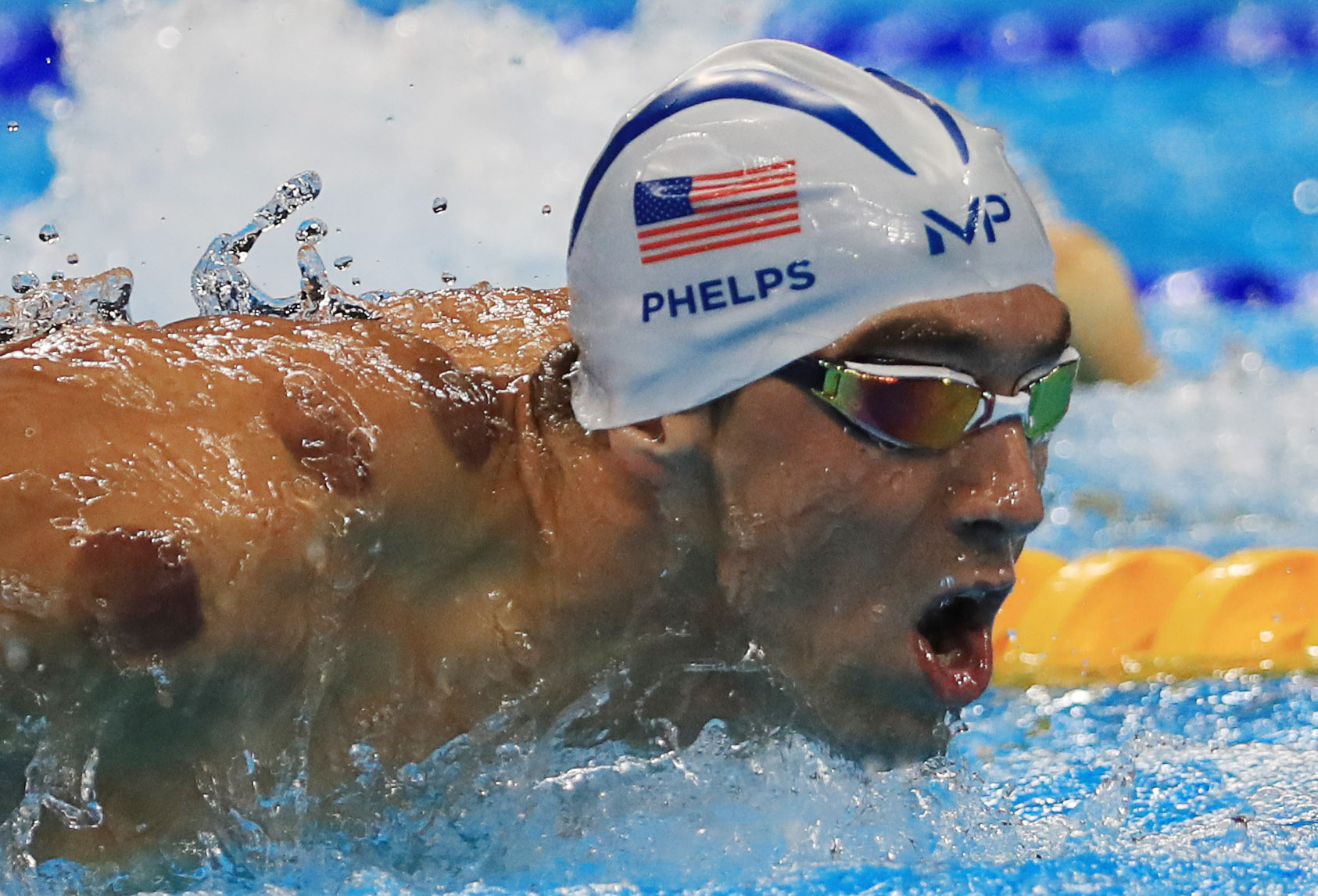 I Tried Cupping Like An Olympian and Heres What Happened photo