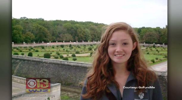 Teen Dies After Contracting Brain Eating Amoeba In Maryland Cbs News