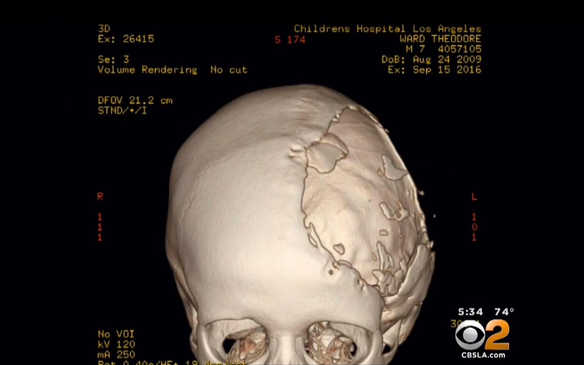 3-D printer implant, surgery give rambunctious boy back his skull