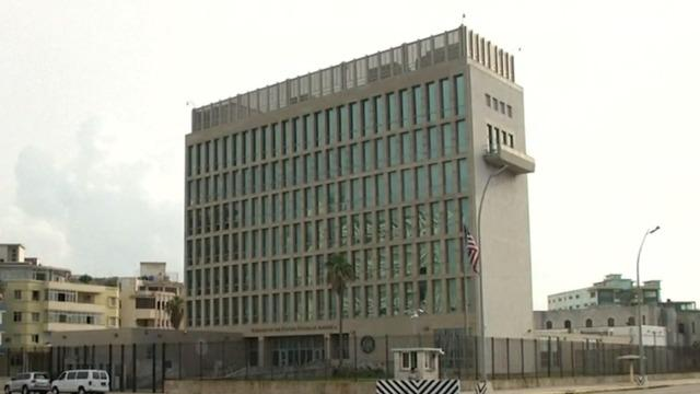 Cuba health attacks: Here's the sound U.S. diplomats heard -- AP