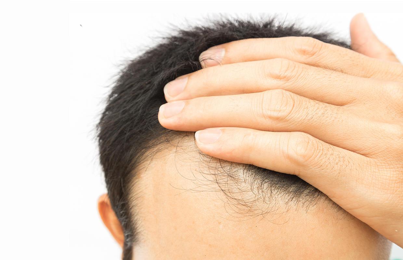 Rüyada Uzun Saç Sarı Diplerinin Birden Beyazlaması Olması Ağarması