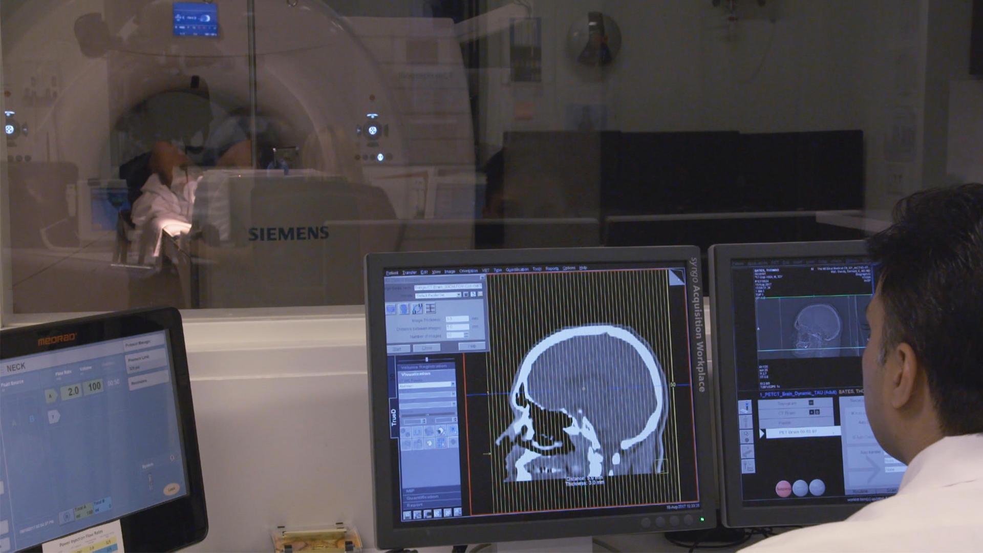Brain Imaging Studies Seek Signs Of >> Scientists Seek Veterans To Help Treat Cte