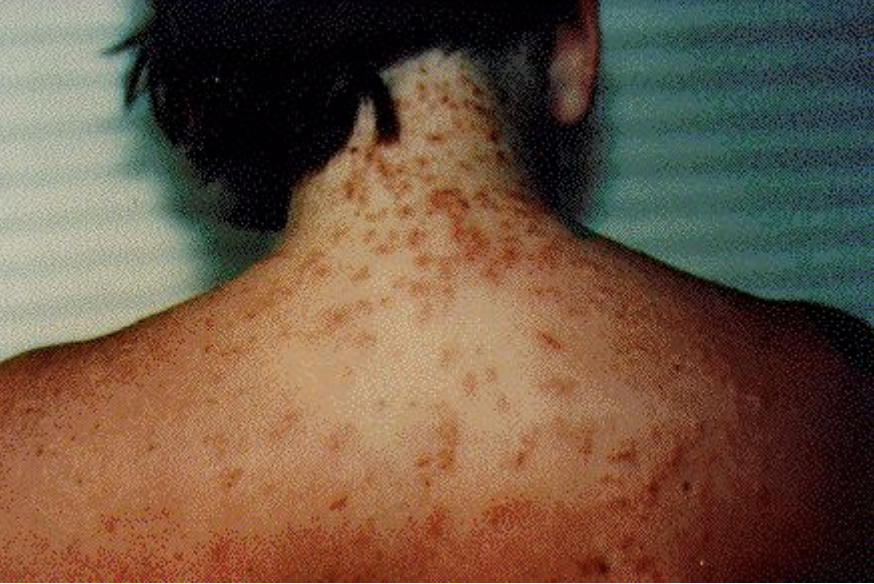 05285b1b018 Sea lice reported on Pensacola Beach in Florida - CBS News