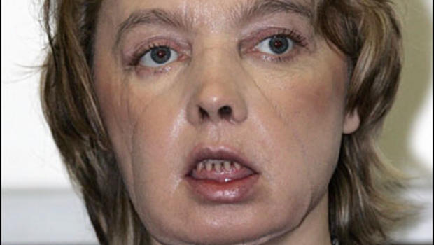 Facial partial transplant #15