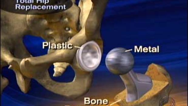 Hip Resurfacing Leaves The Thigh Bone Intact