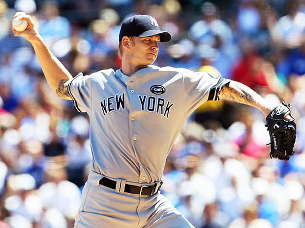 Tommy John surgery: Who's had it?