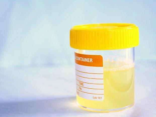 urinesample.jpg