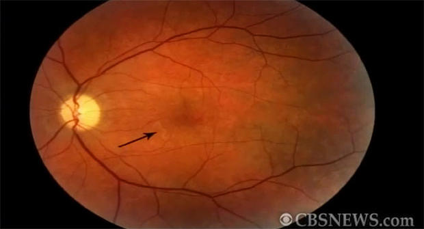 Arrow shows tiny worm that was living in the retina of Cedar Rapids, Iowa man.
