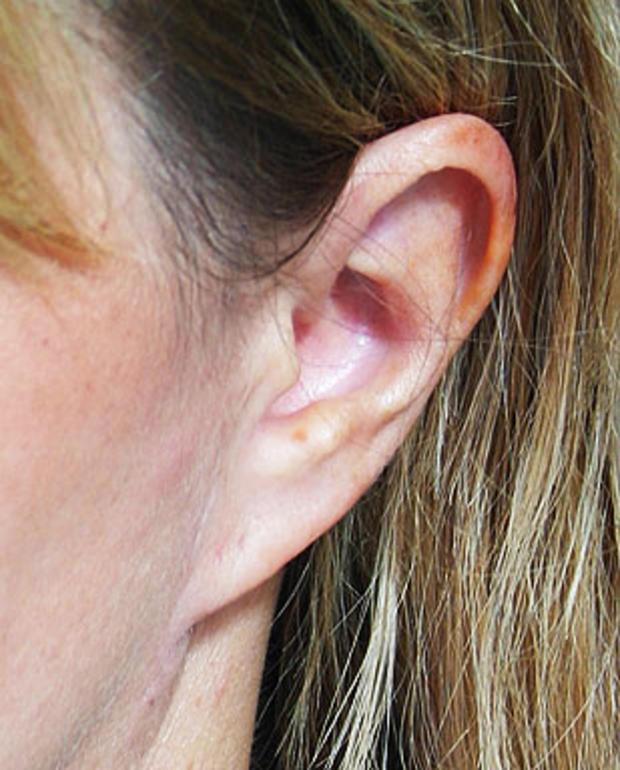 Pixie-Ear-Deformity.jpg