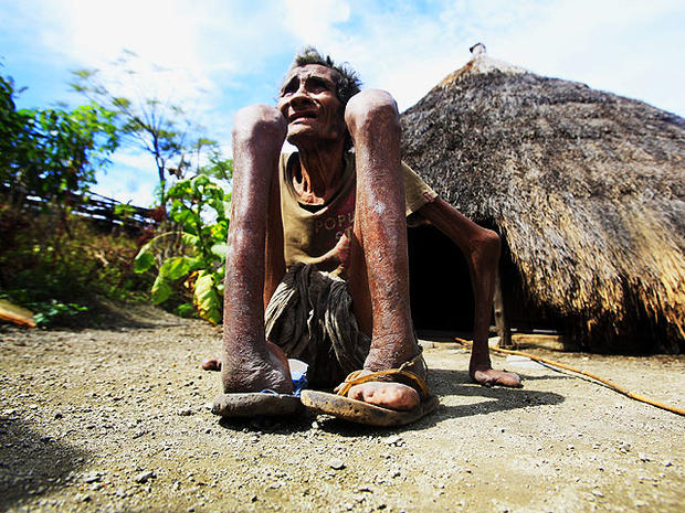 Leprosy is still a threat in parts of Indonesia, where this photo was taken on July 8, 2010. It shows former leprosy  patient Adelino Quelo, 68, crouching outside his hut. His fingers, toes and parts of his hands and feet are missing. (AP Photo/Wong Maye-E)