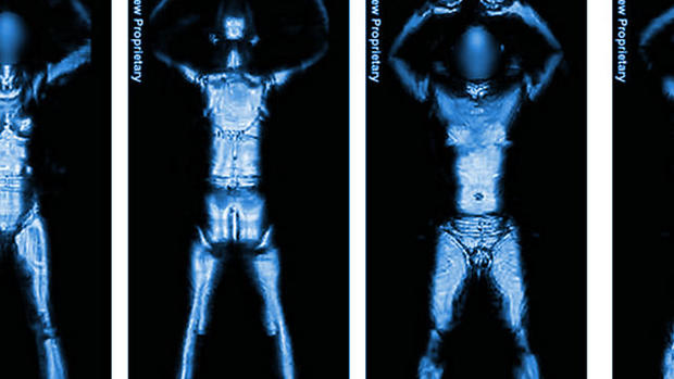 """Airport Scanners and 12 Must-Know Radiation """"Risks"""""""