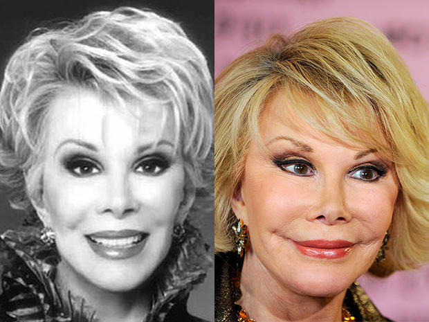 Joan Rivers - Celebrity Plastic Surgery Disasters