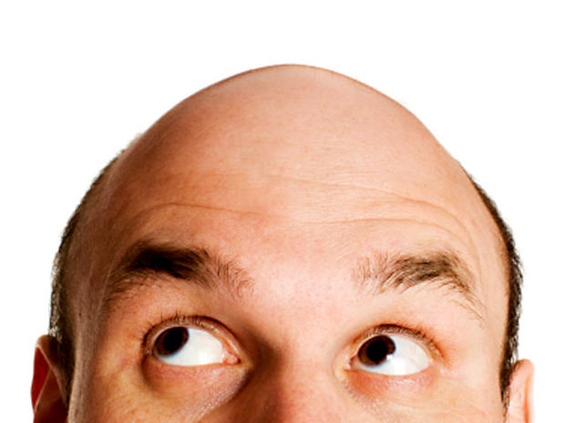 Hey, Baldy: 10 Things You Need to Know about Hair Loss