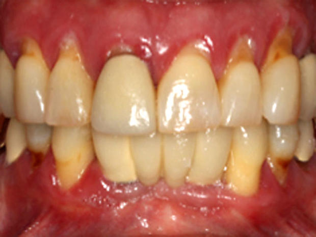 Red-inflammed-gums.jpg