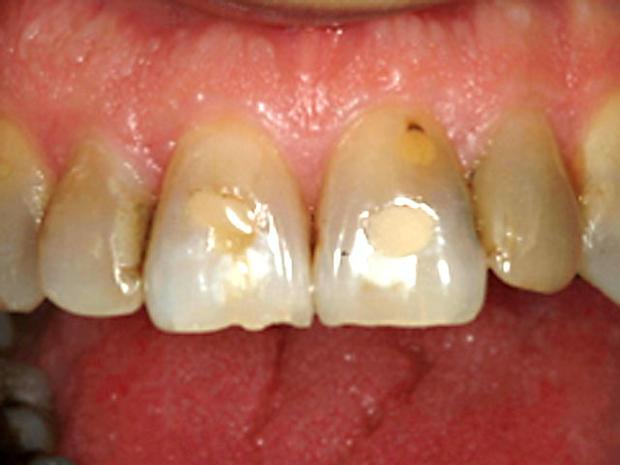 Worn-down-teeth.jpg