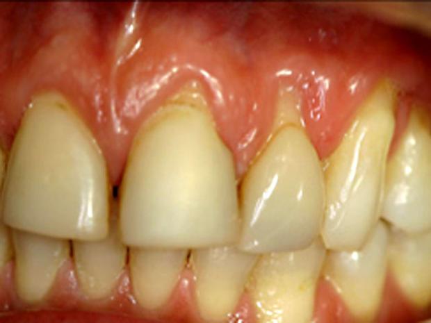 Gum-recession,-teeth-sensit.jpg