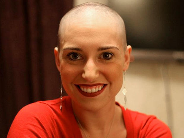 Jenna Benn Bald And Beautiful Cancer Patients Inspiring - Bald hairstyle quotes