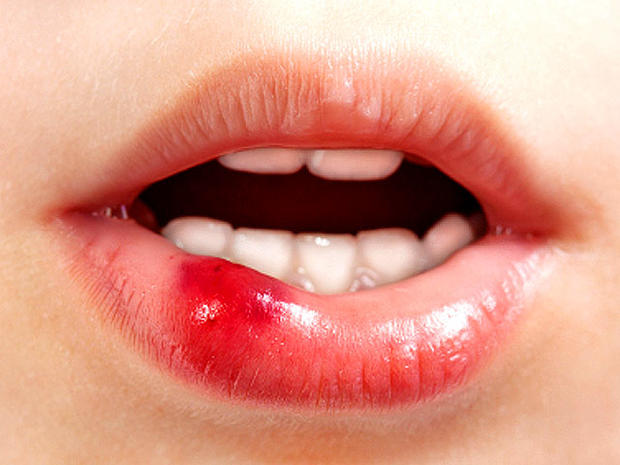 ulcer_lip_iStock_0000142734.jpg