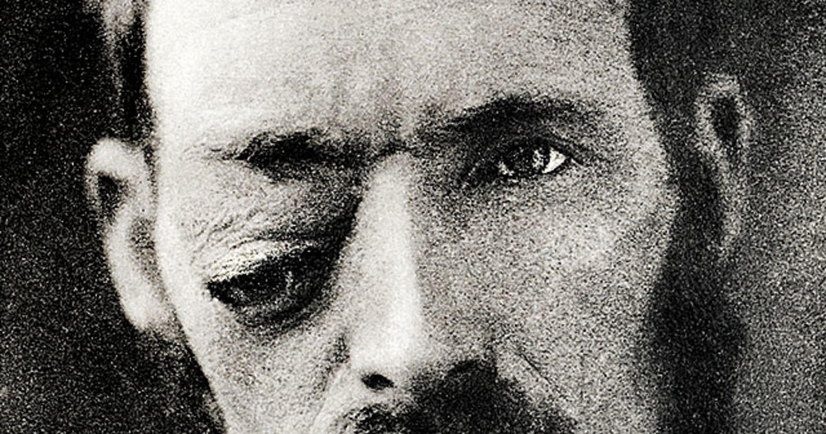 Civil War Bulllet Wounds Of The Eye Eye Care In The