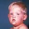 measles3.jpg