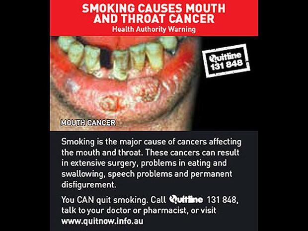 australia-tobaccowarninglabel.jpg