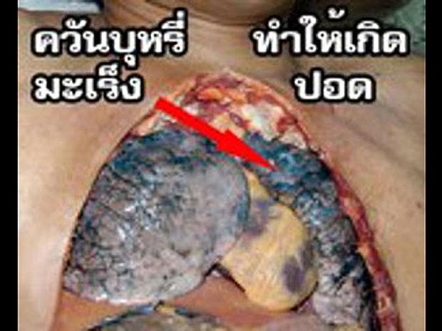 thailand-tobaccowarninglabel.jpg