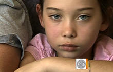 Calif. girl survives rabies without treatment