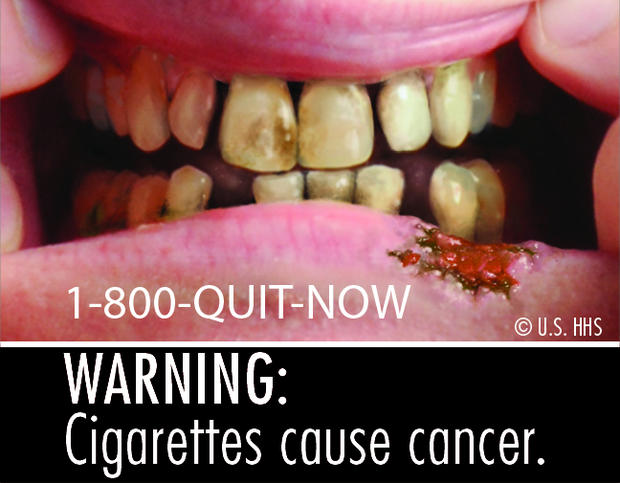 Cigarettes cause cancer