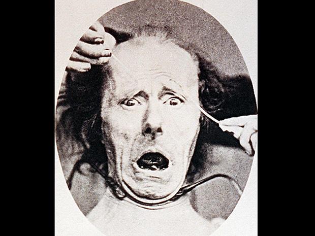 psychiatryburns16.jpg