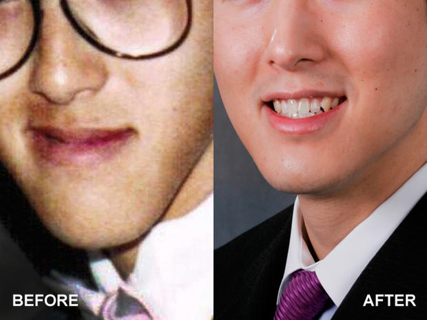 Chubby cheek surgery - 13 bizarre but popular plastic