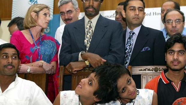 a biography of benjamin carson the surgeon who did the dangerous surgery to separate a siamese twins Answer: dr carson and his wife started a foundation to help poor children gain an education dr carson has written several books he travels and speaks frequently enjoyed the easy science for kids website all about ben carson info take the free & fun all about ben carson quiz and download free ben carson worksheet for kids.