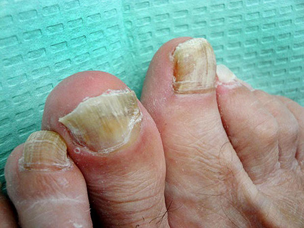 Ouch! 7 nasty foot flaws and how to fix them (GRAPHIC IMAGES)