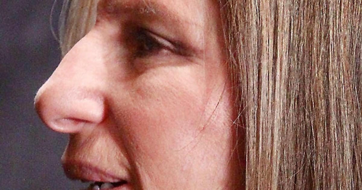 14 celebrity noses: Whose schnoz do you share? - Photo 1