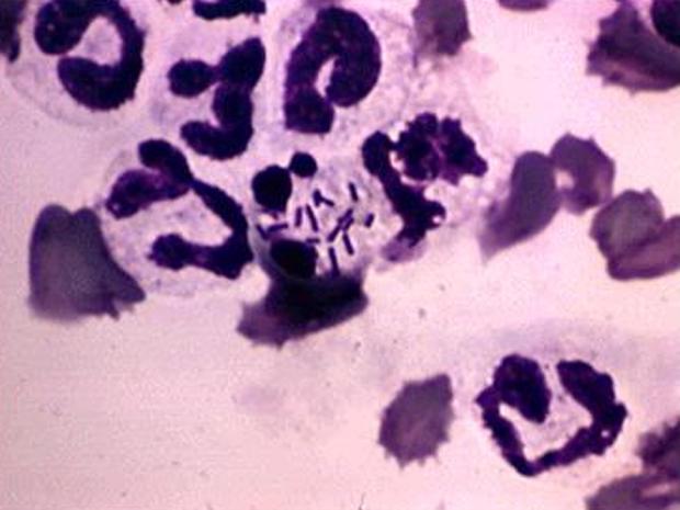 Listeria outbreak