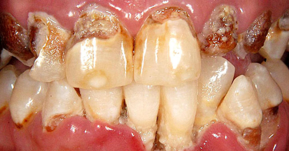 Meth Mouth Inside Look At Icky Problem 15 Graphic Images Cbs News