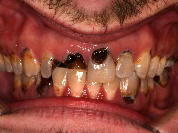Meth mouth: Inside look at icky problem (15 GRAPHIC IMAGES