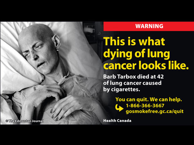 Yikes! Gruesome new tobacco warning labels from Canada