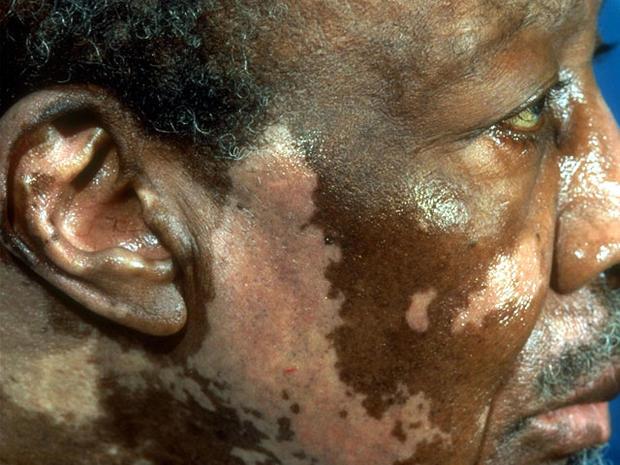 vitiligoface.jpg