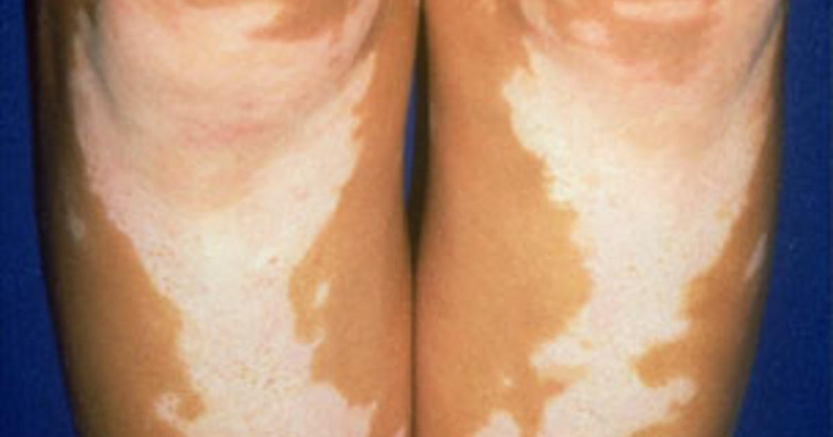 What Are The Symptoms Of Vitiligo Vitiligo Illustrated Guide To Pigmentation Disorder Cbs News