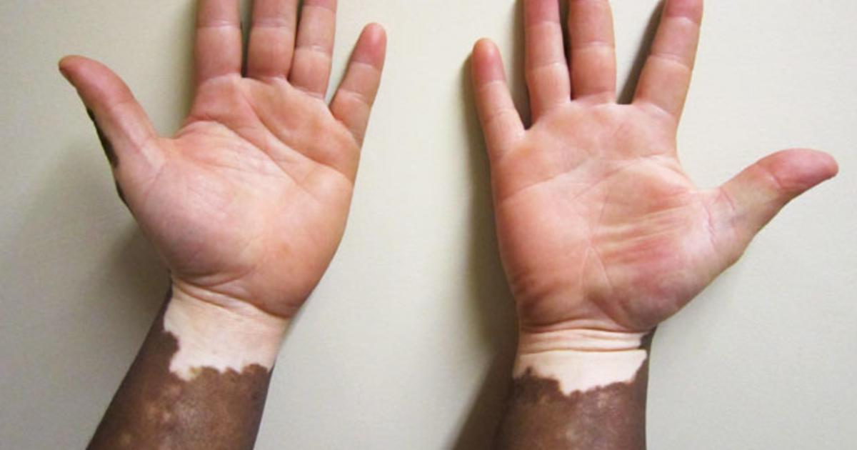 Vitiligo Illustrated Guide To Pigmentation Disorder Cbs News