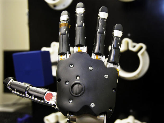 Robotic arm lets paralyzed man touch girlfriend