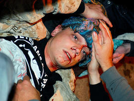 In this photo taken Oct. 25, 2011, 24-year-old Iraq War veteran Scott Olsen lays on the ground bleeding from a head wound after being struck by a by a projectile during an Occupy Wall Street protest in Oakland, Calif.