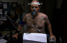 Heart patient sees results in stem cell study
