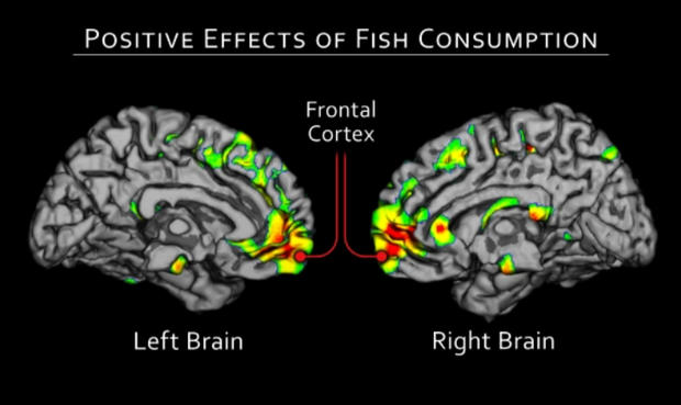 alzheimers, fish, brain