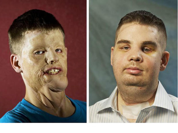 face transplant, mitch hunter, brigham and women's hospital