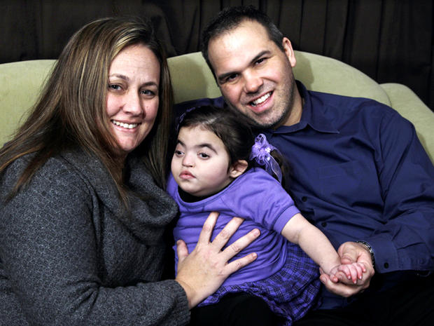 Amelia Rivera, 3, in struggle for kidney transplant over disability